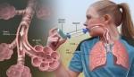 پاورپوینت آسم در کودکانو تاثیر ورزش بر آن